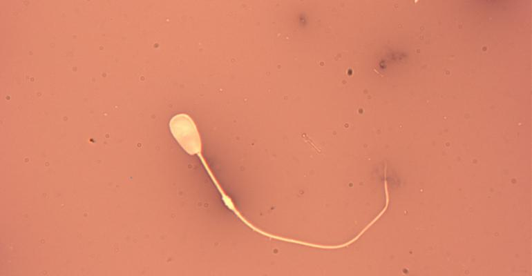 Sperm cell with abaxial tail and distal droplet